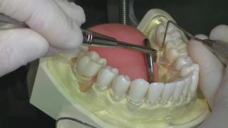 歯周治療ベーシックセミナー:第2章『プロービング』