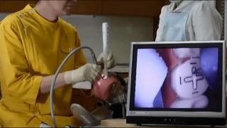 口腔内カメラを用いた窩洞形成の方法