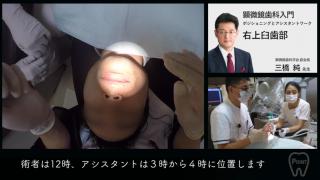 顕微鏡歯科治療入門   第1回 [ 右上臼歯部 ]