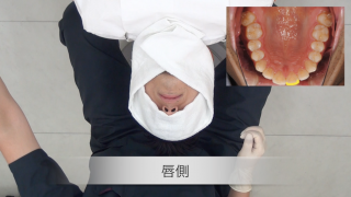 ポジショニング 上顎前歯部 アシストなし