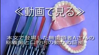 「チームワーク総義歯臨床」付録DVD第1部 総義歯を使っての咀嚼