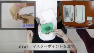 9章 STEP 4 根管充填治療の流れの画像です