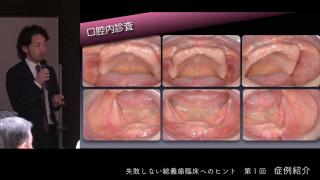 失敗しない総義歯臨床へのヒント 第1回[ 症例紹介]