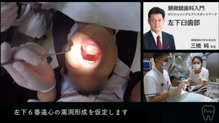 顕微鏡歯科治療入門 第3回 [ 左下臼歯部 ]