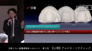 失敗しない総義歯臨床へのヒント 第2回[ 上顎アルジネートテクニック]