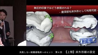 失敗しない総義歯臨床へのヒント 第4回[ 上顎 床外形線の設定]