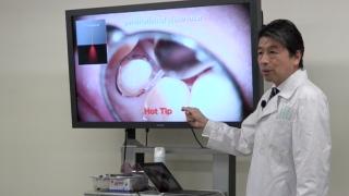 歯科用レーザー各論 第2回「半導体レーザー」