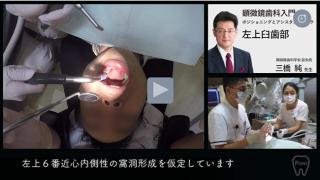 顕微鏡歯科治療入門   第2回 [ 左上臼歯部 ]