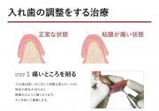 入れ歯の調整の画像です
