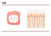 臼歯の説明の画像です