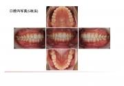 口腔内写真5枚法の画像です