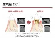 歯周病とはの画像です