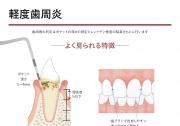 軽度歯周炎の画像です