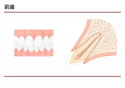 前歯の説明の画像です