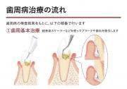 歯周病の治療の流れ
