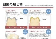 臼歯の被せ物の画像です