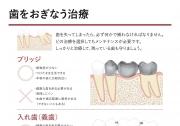 ブリッジ・義歯・インプラントの選択