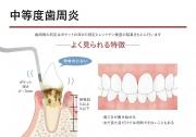 中等度歯周炎の画像です
