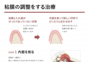 粘膜調整の画像です