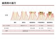 歯周病の進行の画像です