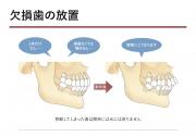 欠損歯の放置の画像です