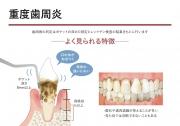 重度歯周炎の画像です