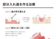 部分入れ歯(パーシャルデンチャー)を作る治療の画像です