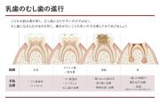 乳歯のむし歯の進行