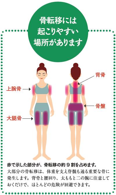 骨転移がおこりやすいのは背骨と腰まわり、二の腕と太もも