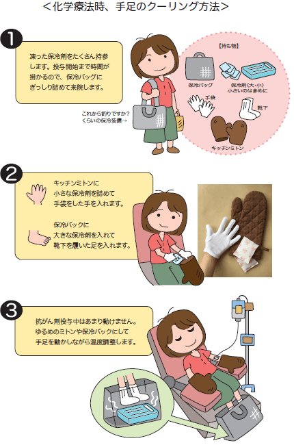 化学療法時、手足のクーリング方法