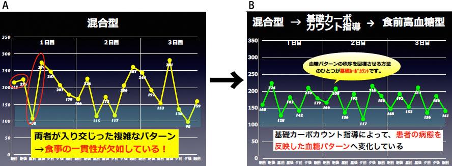 図3:食前高血糖型と食後高血糖型が混合した患者さんが「基礎カーボカウント」をマスターした結果