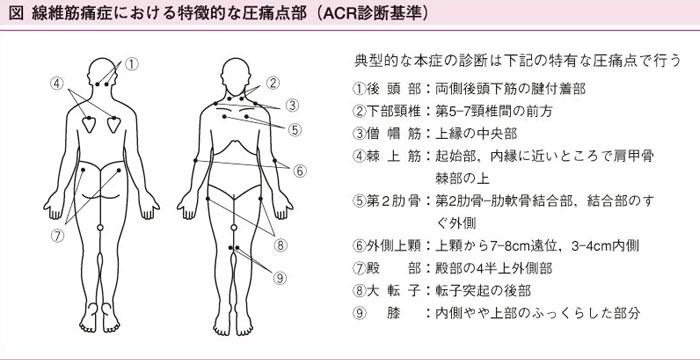 図:米国リウマチ学会の診断基準(1990)
