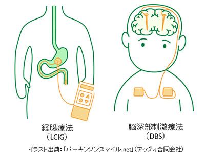 図1:デバイス治療の経腸療法(左)、脳深部刺激療法(右)