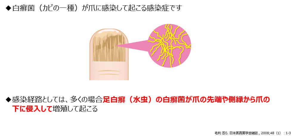 図1:爪の水虫(爪白癬)とは?