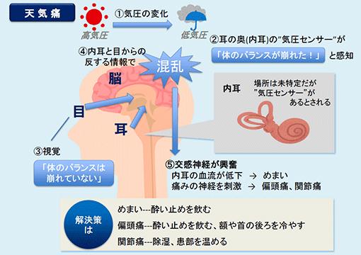 図2:気圧の変化による天気痛やめまいの発症メカニズム