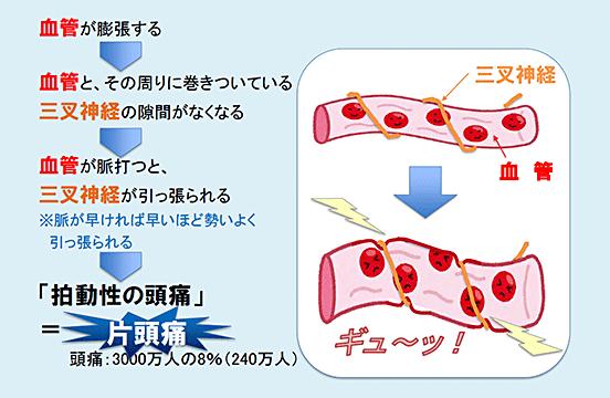 図2:片頭痛はどのようにしておこるのか