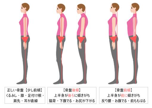 骨盤の正しい位置、骨盤と姿勢の関係