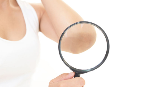 薄着の季節は特に目立つ……お肌の黒ずみ徹底対策