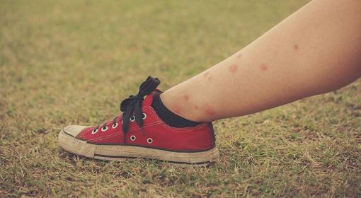 今年の夏は虫刺され痕を残さない!虫刺され徹底予防&対処法