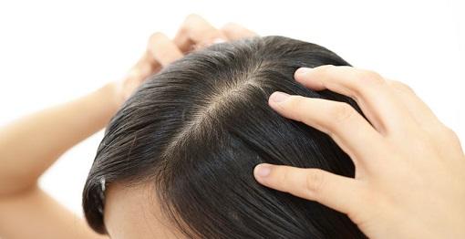 ヘアケアで白髪を予防する