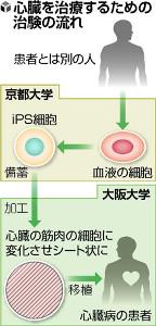 iPS製品化へ治験…心筋作り移植、新年度申請(読売新聞) - Yahoo!ニュース