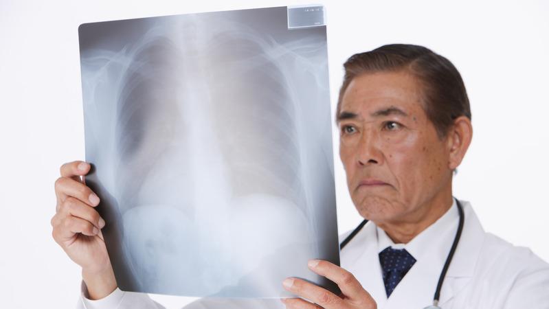 がん検診は99%が「誤診」?意外と知らないデータの真実(市川衛) - Yahoo!ニュース