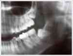 埋伏智歯(埋まっている親知らず)の抜歯について