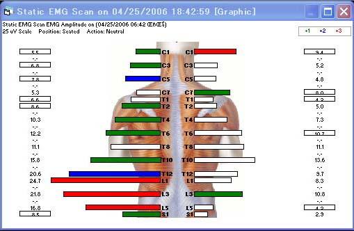 客観的手段で背部筋バランスを確認