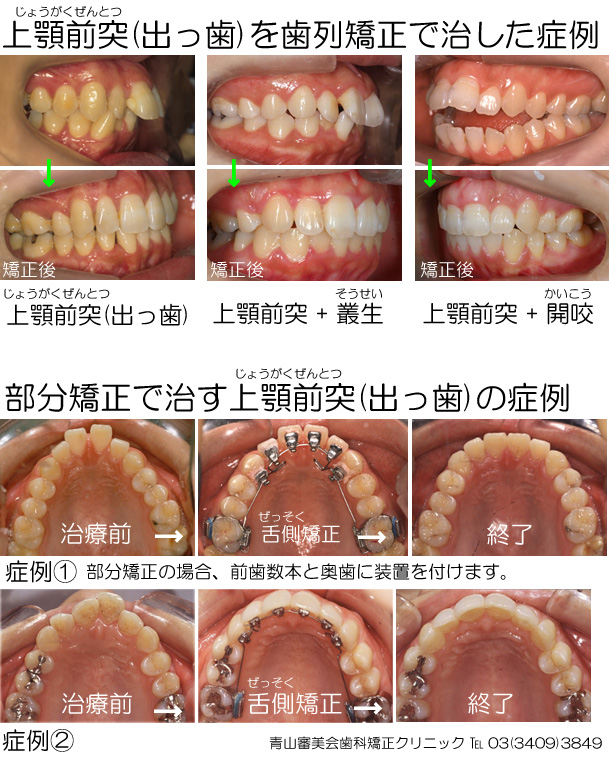 自力で出っ歯を治すには、歯が動くスペースの他に