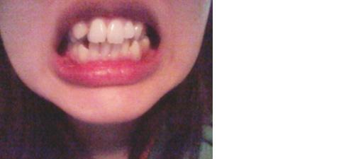 ガタガタて出っ歯で八重歯、口を閉じたときに顎に梅干し