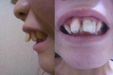 出っ歯とすきっ歯、この歯並びで...
