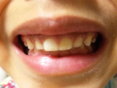 息子(6歳)が学校検診で『過蓋咬合』と言われ、噛み合わ