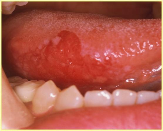 <医学博士が教える舌がんの知識>舌がんを簡単に見分ける方法とは?