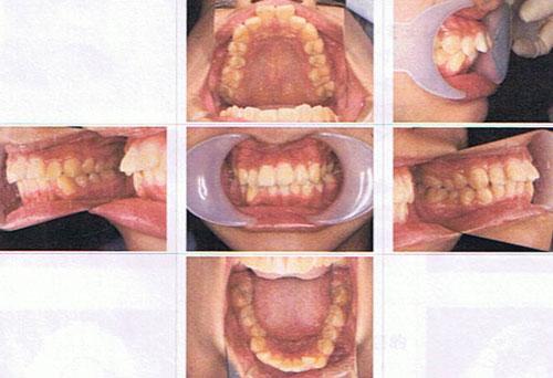 舌側矯正で歯をけずる形の部分矯正が可能?出っ歯で